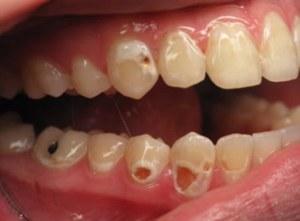 rotten-teeth